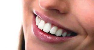 5 Tips Agar Gigi Kuat Dan Berkilau Secara Alami