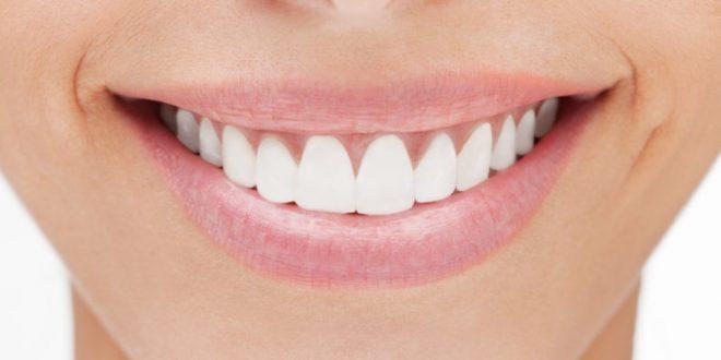 Cara Keren Miliki Gigi Kuat dan Gusi yang Sehat